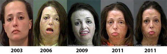 Health Effects of Meth use